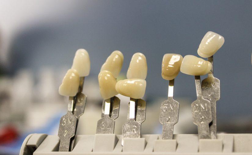 Przepiękne zdrowe zęby również niesamowity prześliczny uśmiech to powód do zadowolenia.